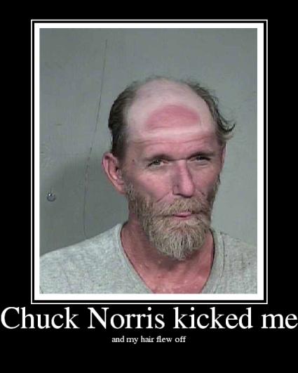 ChuckNorriskickedme.jpg